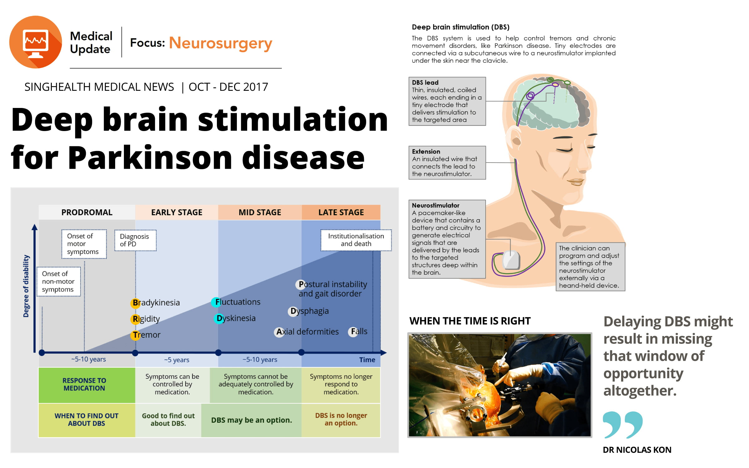 Snapshot of newsletter describing deep brain stimulation for Parkinson disease
