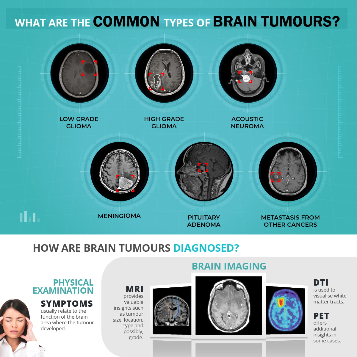 Important and common brain tumour types in Singapore